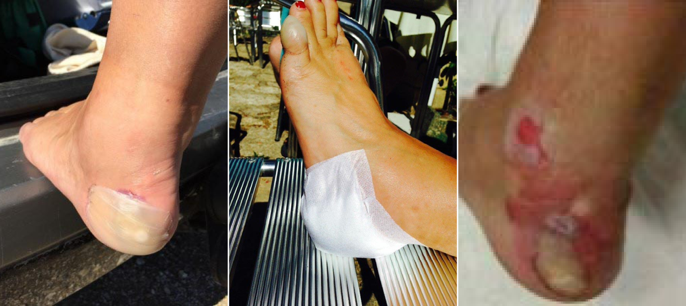 1. Foot before treatment; 2. Foot after treatment; 3. Foot 6 weeks later